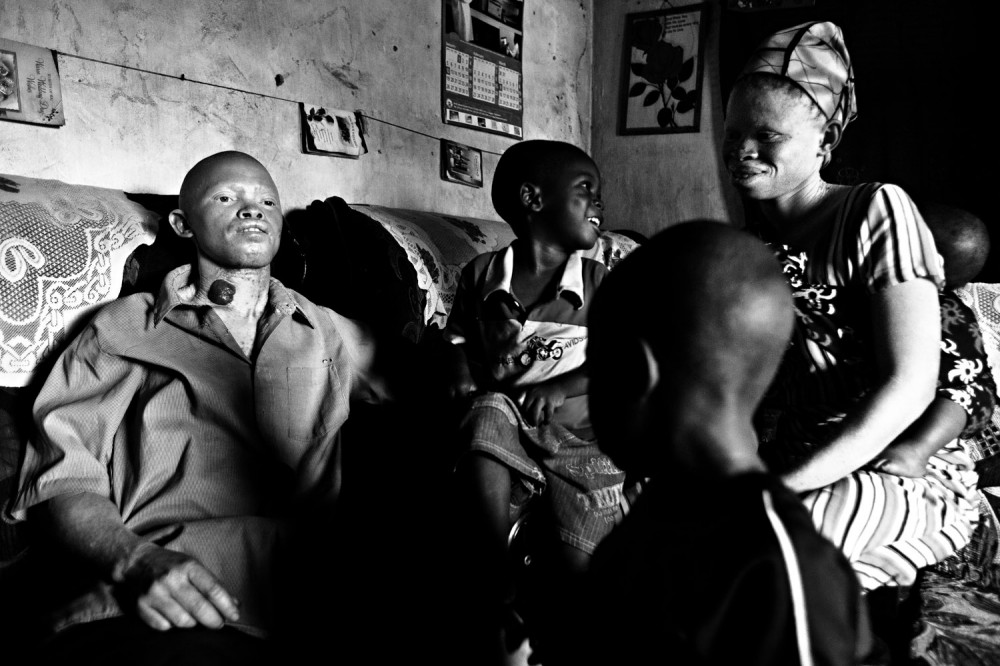 Art and Documentary Photography - Loading FVO-Albino-Killing-Tanzania-12.jpg
