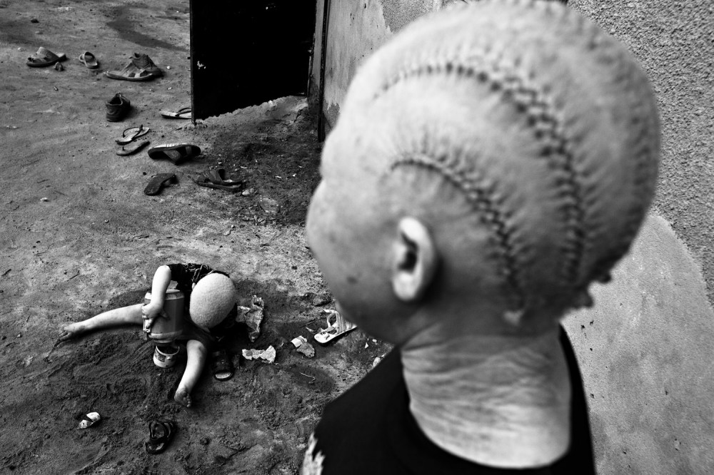 Art and Documentary Photography - Loading FVO-Albino-Killing-Tanzania-27.jpg